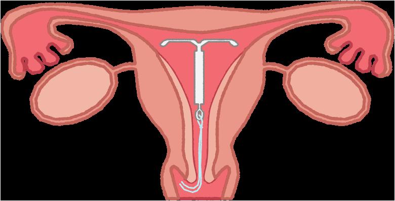 手術 避妊 リング